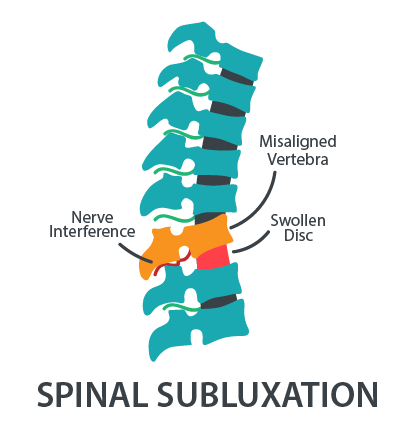 spine-subluxation