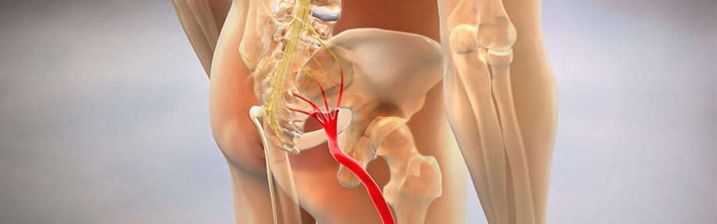 relieve-sciatica-pain-chiropractic